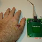 human-implanted_rfid