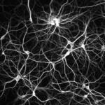 neuroni 150x150 Primul pas spre transplantul de tesut nervos: a fost reusita transformarea de celule de piele in neuroni!