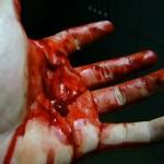 Bloody Hand   2006 by Bird26 650x487 150x150 FOTO LISTA CRIMEI(incompleta). Romania primitiva, psihopata, bolnava, profund degenerata, inecata in sange!! Masacrul cainilor   septembrie 2013   2014. R.I.P poor souls!